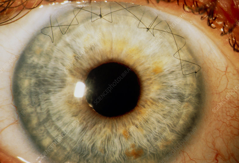 Sutures in an eye from congenital cataract surgery