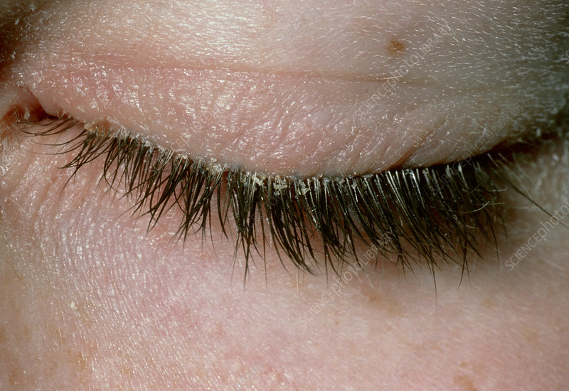 Blepharitis or inflammation of the eyelid
