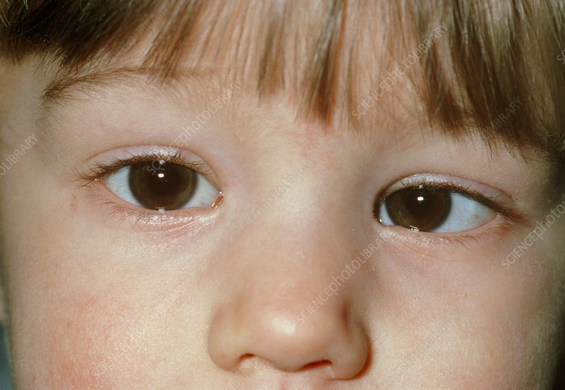 Close-up of child's face with convergent squint
