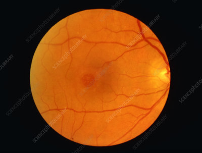Ophthalmoscope view of retina showing macula hole