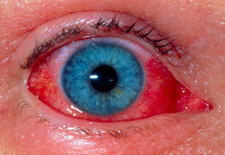Allergic conjunctivitis due to contact lens