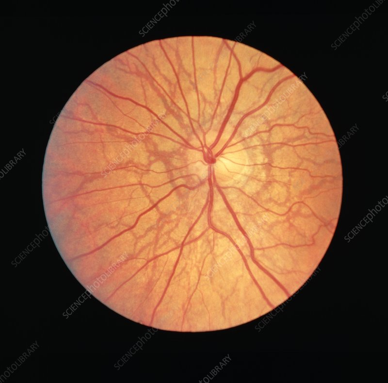Ophthalmoscope View Of Retina With Angioid Streaks