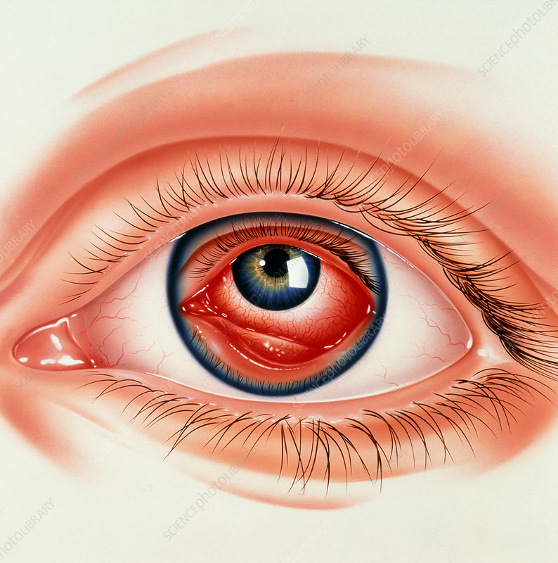 Abstract illustration of eye with conjunctivitis