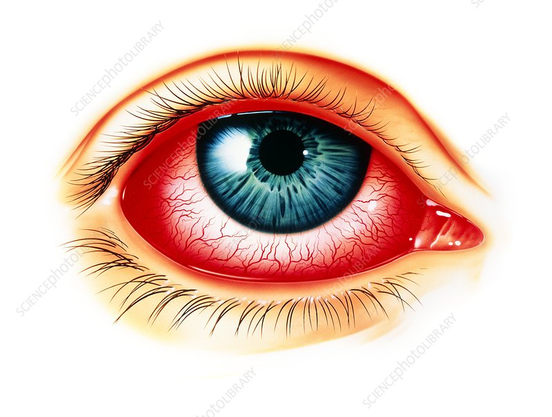 Artwork showing eye with allergic conjunctivitis