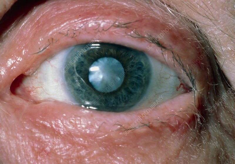 Close-up of cataract in eye