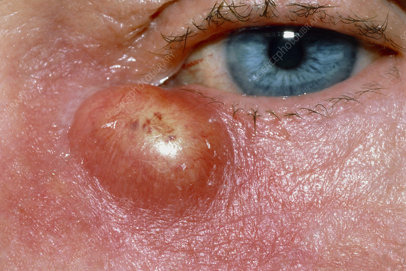 Close-up of lacrimal abscess under eye