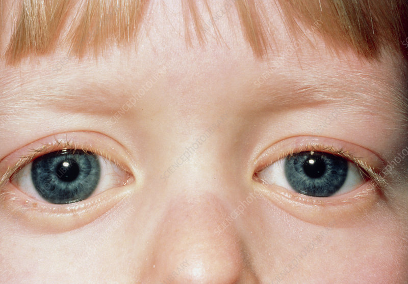 Eyes of a child with congenital glaucoma