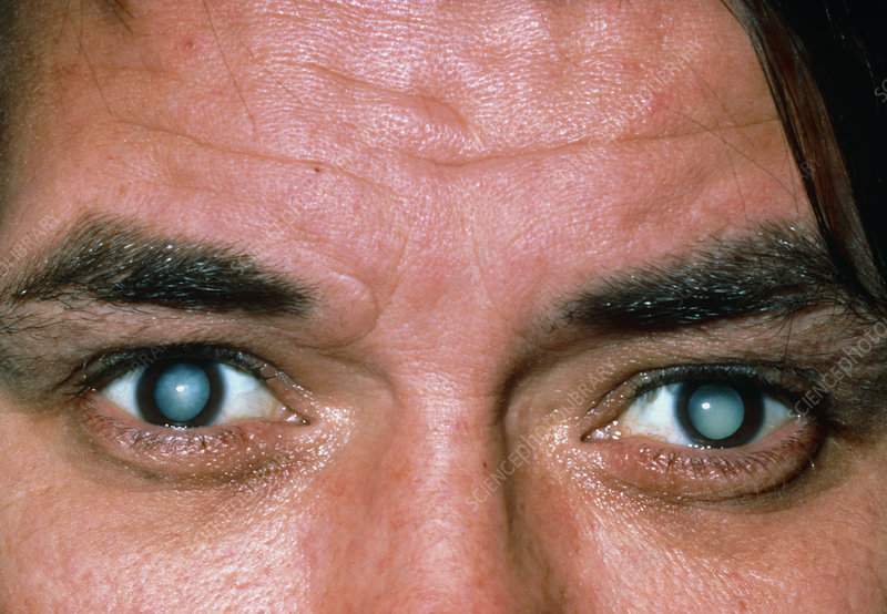 Male patient's eyes with mature cataracts