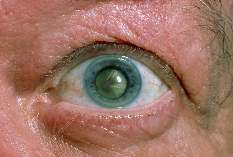 Close-up of patient's eye with trauma cataract
