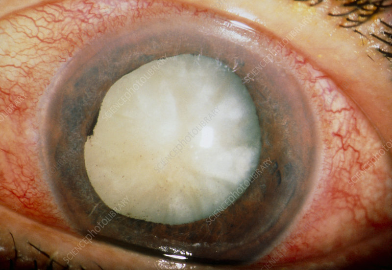 Close up of an eye with a phaco-optic glaucoma