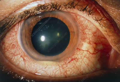 Pus (hypopyon) seen in Behcet's patient's eye