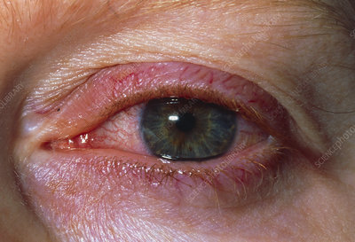 Close up of iritis seen in eye of 30 year old man
