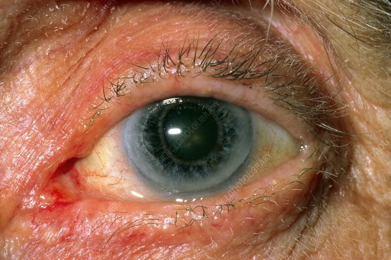 Close-up of patient's eye with early cataract