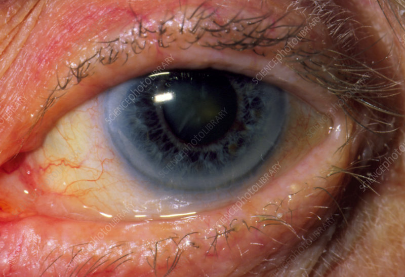 Close-up of patient's eye with mild cataract