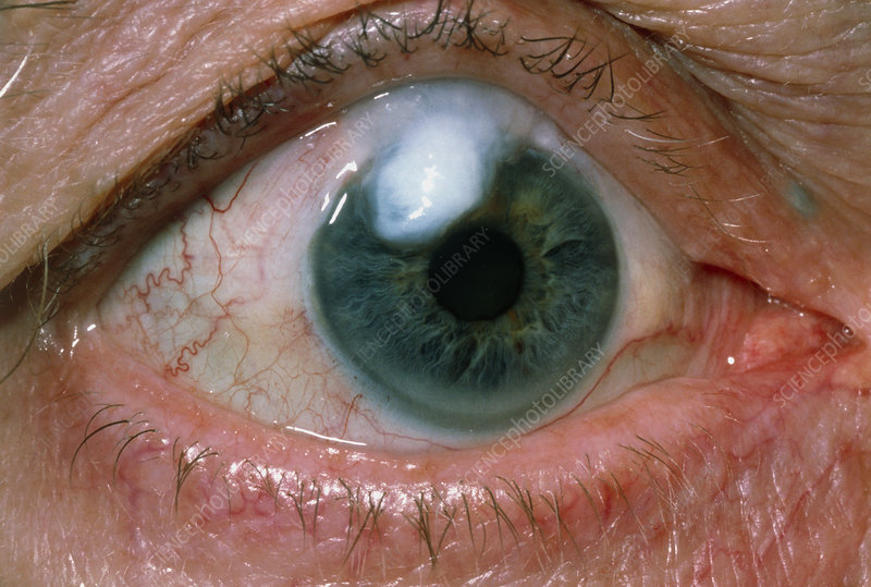 Eye bleb on elderly patient after eye surgery
