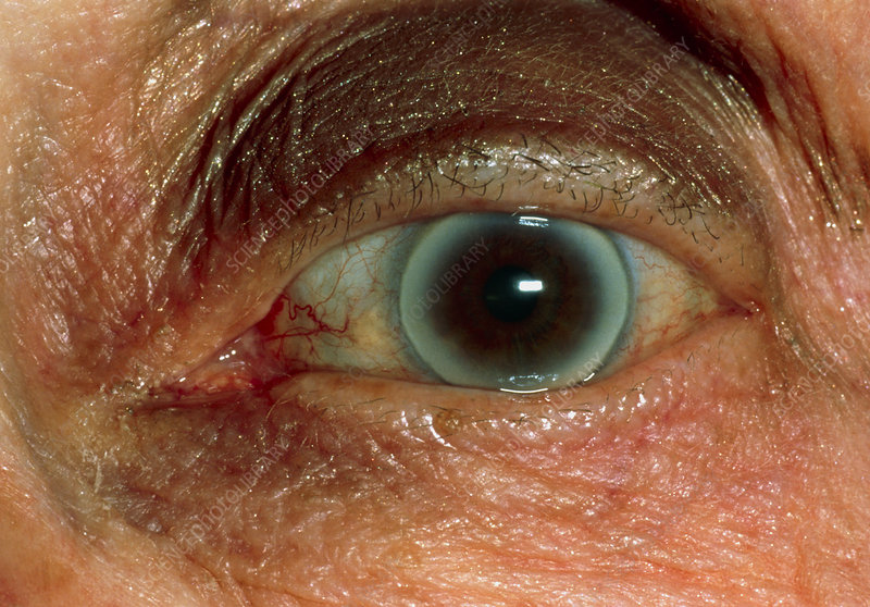 Arcus senilis seen in the eye of an elderly woman