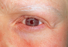 Close-up of the eye of a woman with albinism