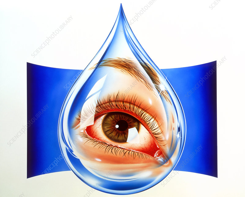 Artwork of an eye with conjunctivitis in tear drop
