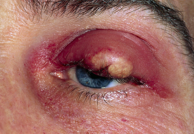 Close up of eye with a meibomian abscess