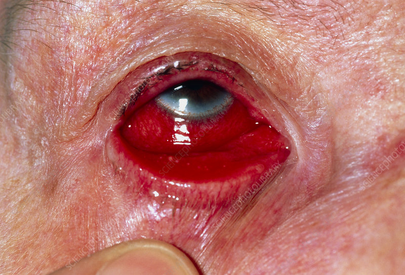 Lowered eyelid of woman with viral conjunctivitis