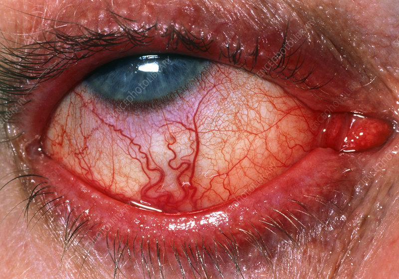 Close up of iritis seen in eye of 52 year old man