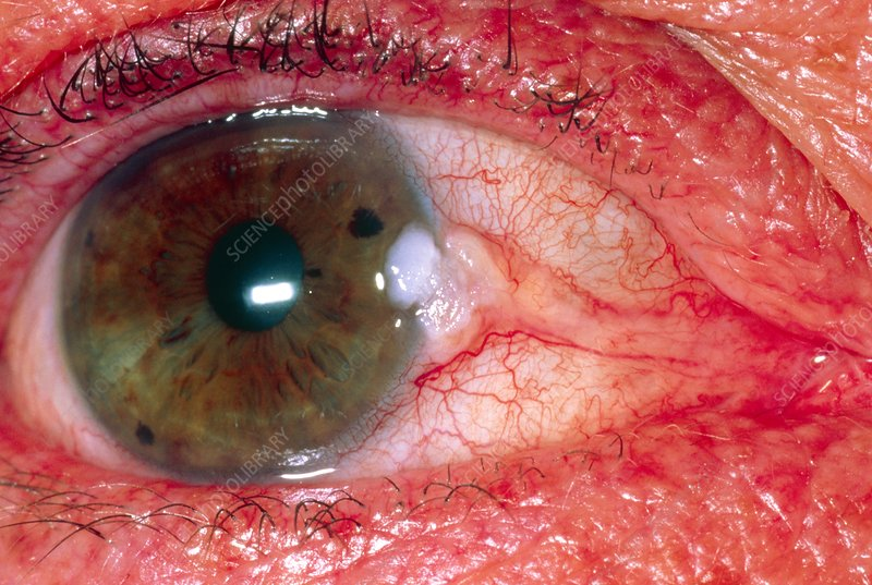 View of an eye showing pterygium