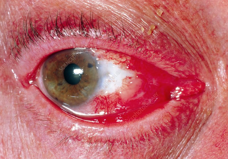 View of an eye after surgery to remove pterygium