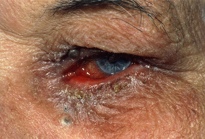 Chronic conjunctivitis caused by ectropion