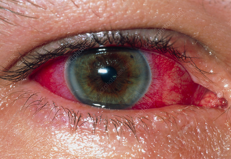 Uveitis of the eye