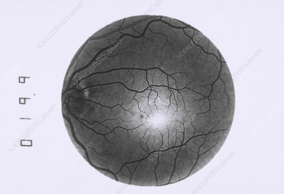 Retinal blood vessel disorder