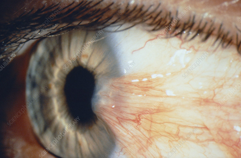Pterygium of the eye