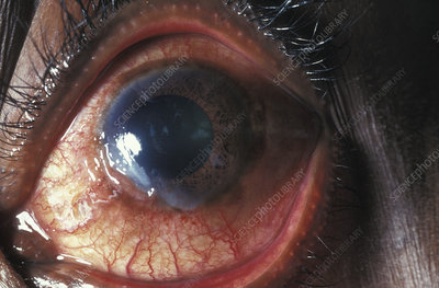 Ulcer of the eye