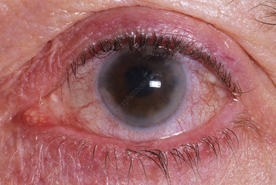 Glaucoma of the eye