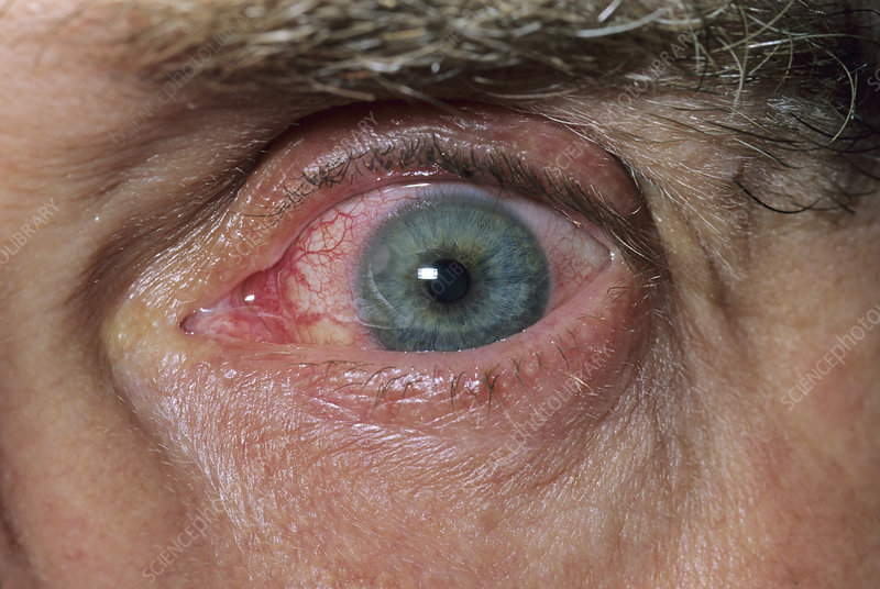 Corneal infection