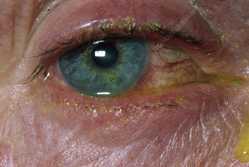 Removal of foreign body in eye