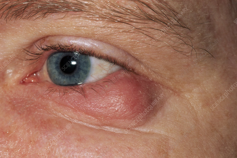 Swollen Eyelid Stock Image M155 0520 Science Photo Library