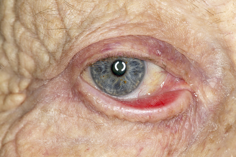 Ectropion (dropping eyelid) of the eye