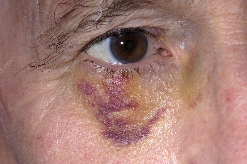 Post-op bruising of the eyelid