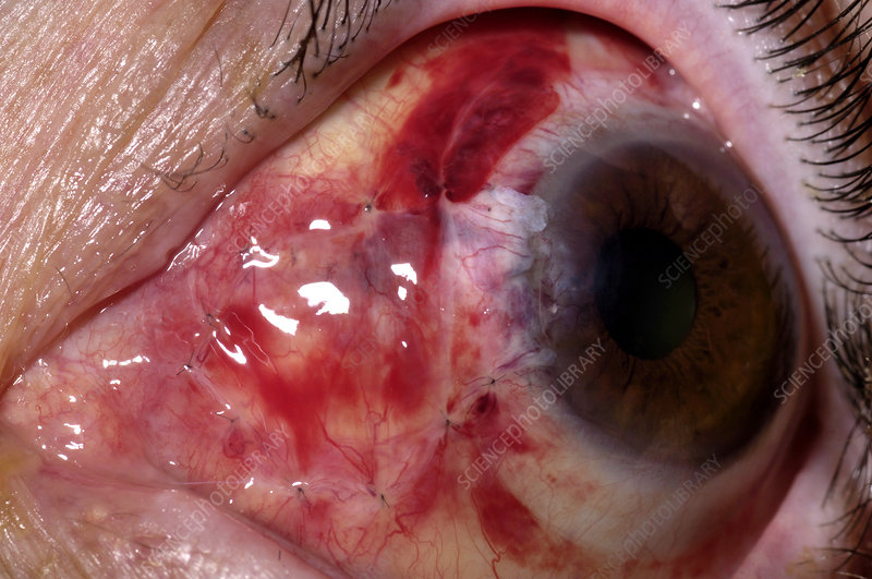 Eye after pterygium excision