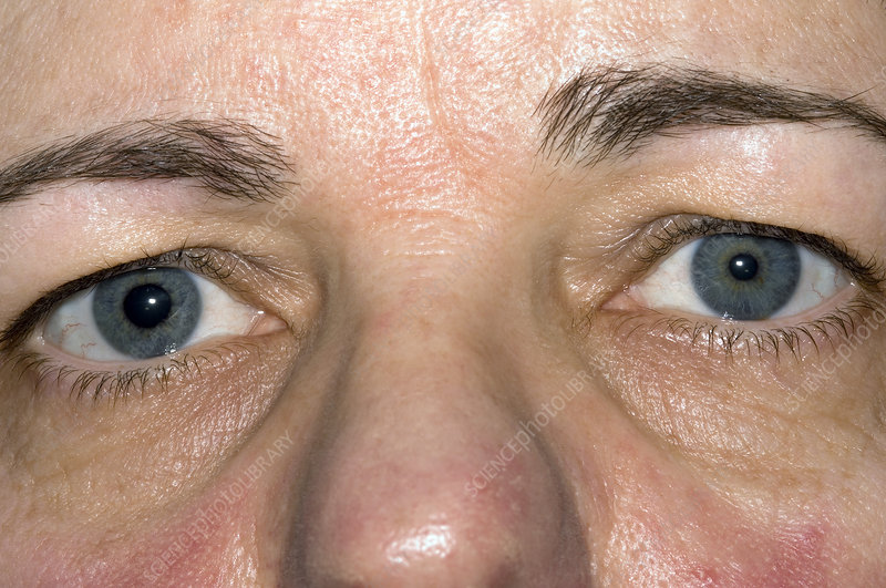 Adies syndrome - Stock Image - M155/0557 - Science Photo