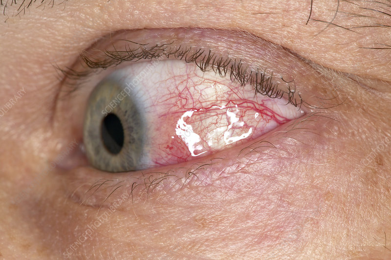 Inflamed white of the eye