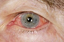 Inflamed iris