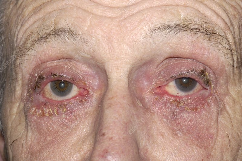 Allergic reaction to glaucoma eye drops