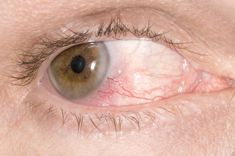 Episcleritis of the eye