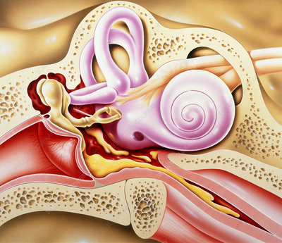 Otitis media of ear