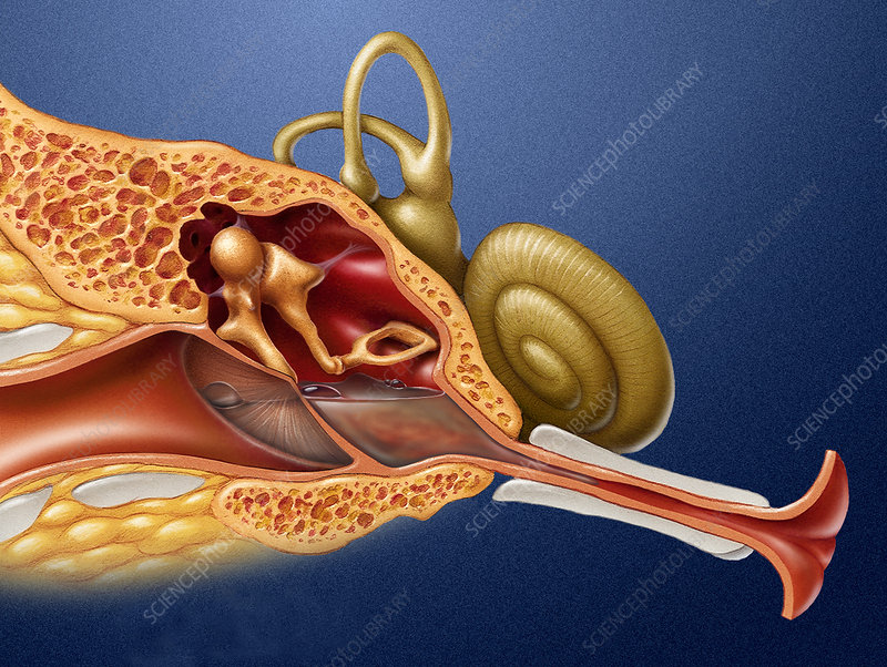Ear Infection - Stock Image - M157/0065 - Science Photo ...