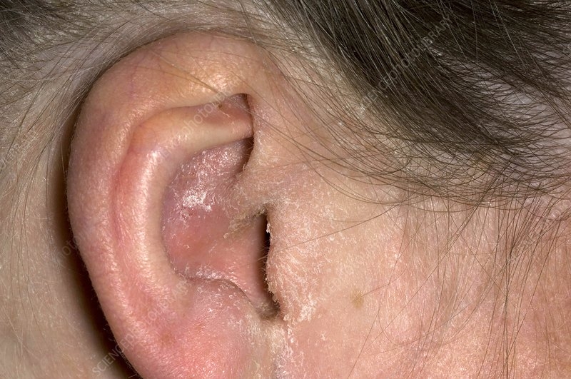 Грибок в ушах чем лечить народные средства