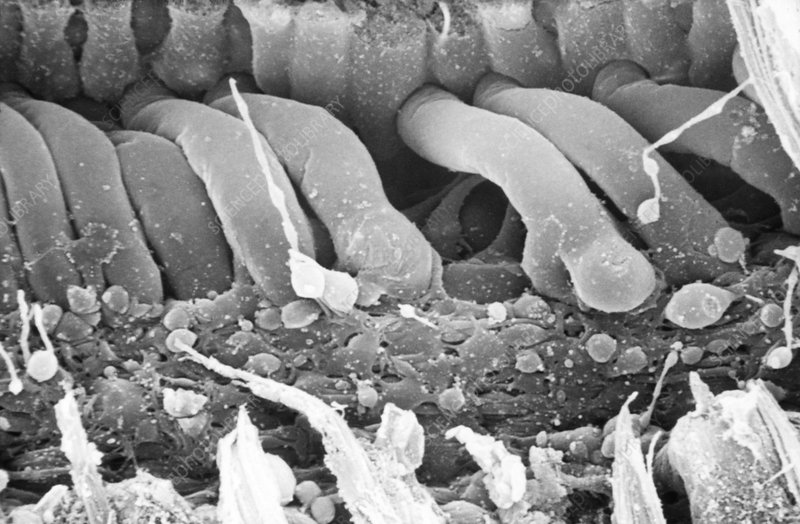 Damaged inner ear hair cells, SEM