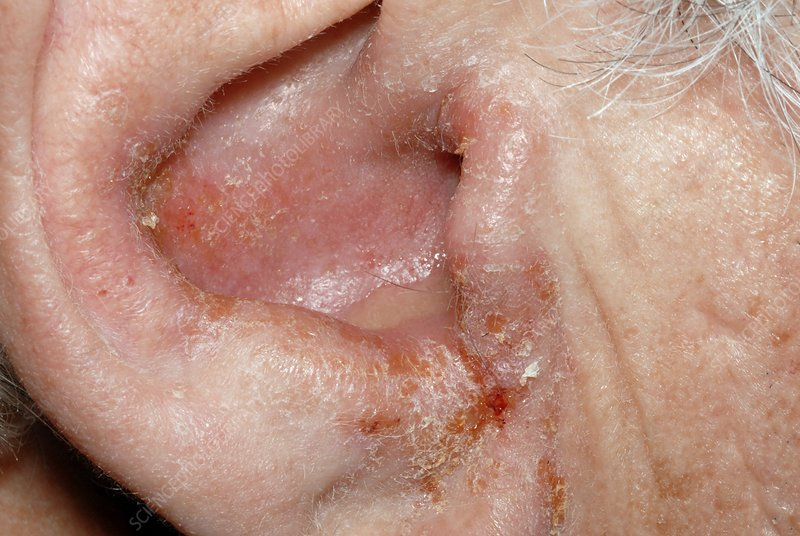 how to kill staph in ear