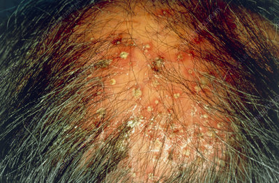 Man suffering with folliculitis